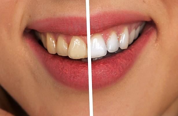 Kilka tajemniczych sposobów jak utrzymać białe zęby!