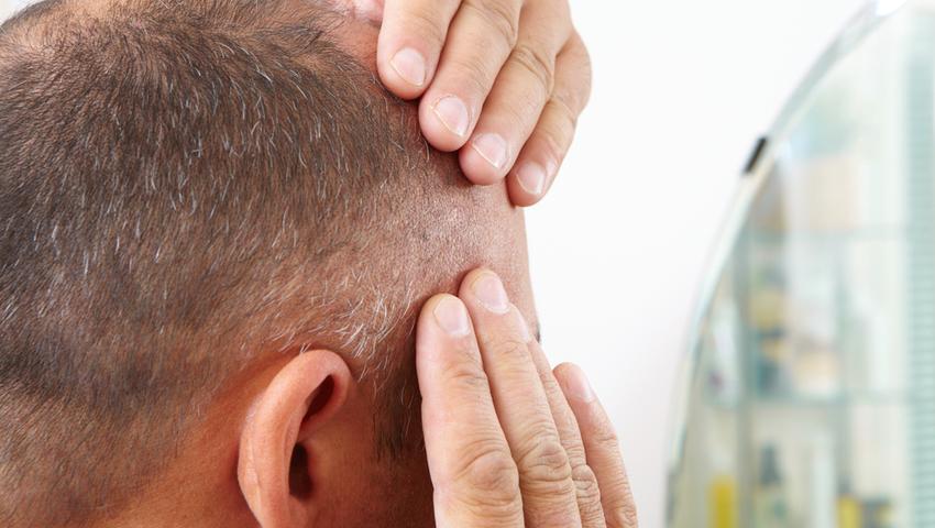 Wypadanie włosów – czy przeszczep włosów to jedyna opcja?