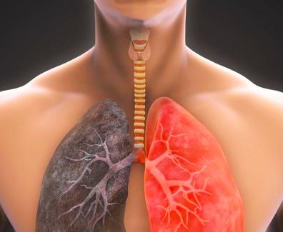 płucka
