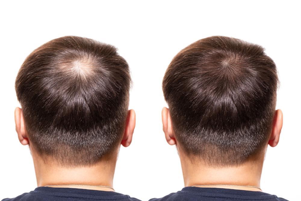 profolan preparat na wypadanie włosów