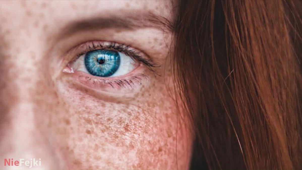 Przebarwienia – jak powstają i skąd się biorą?